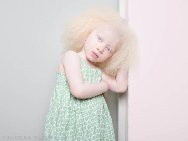 La belleza única de las personas albinas y pelirrojas
